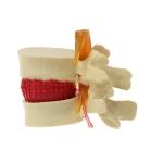 Human Lumbar Disc Herniation Demonstration Model Orthopedic Spine Model(Yellow)